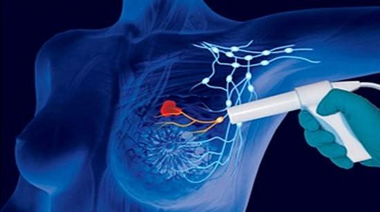 Biopsia ganglionului santinela in cancerul mamar