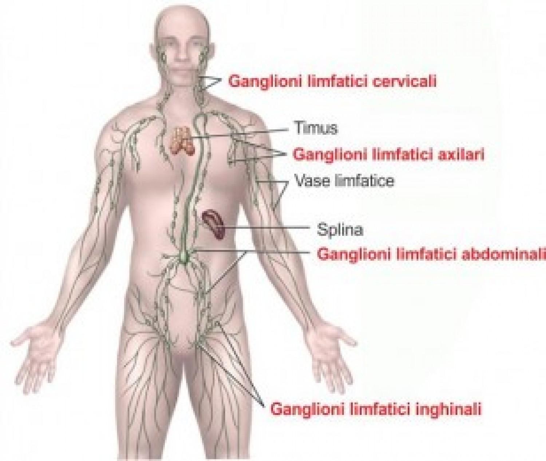 cancer ganglionar