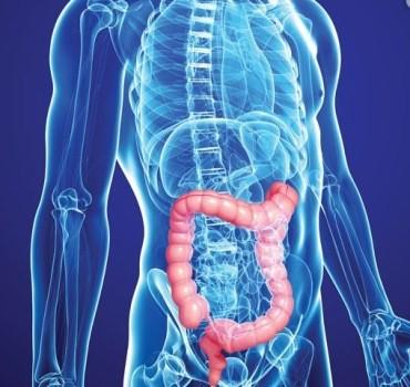 Cancer de colon | Simptome, cauze și tratament | SANADOR