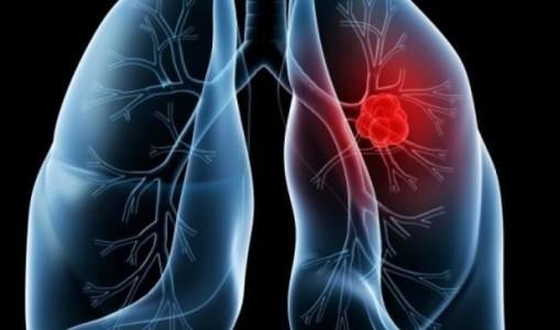 Tratamentul cancerului pulmonar - chimioterapia si radioterapia