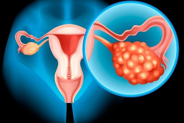cancer la ovare tratament