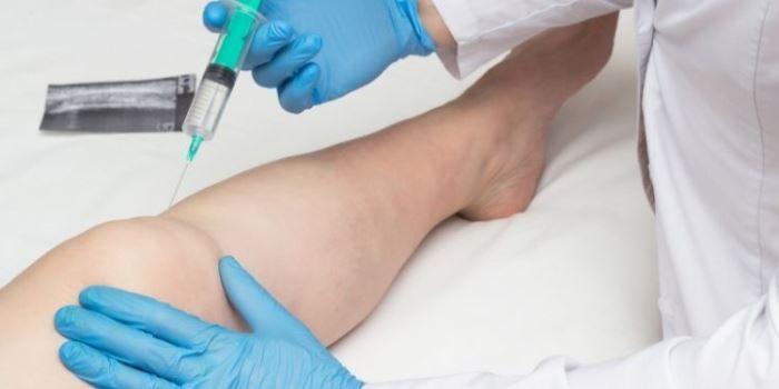injecție anestezică pentru dureri articulare)