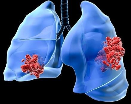 chimioterapia in cancerul de plamani)
