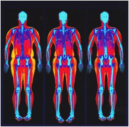 Osteodensitometrie-osteoporoza-DXA-GRAL-Medical