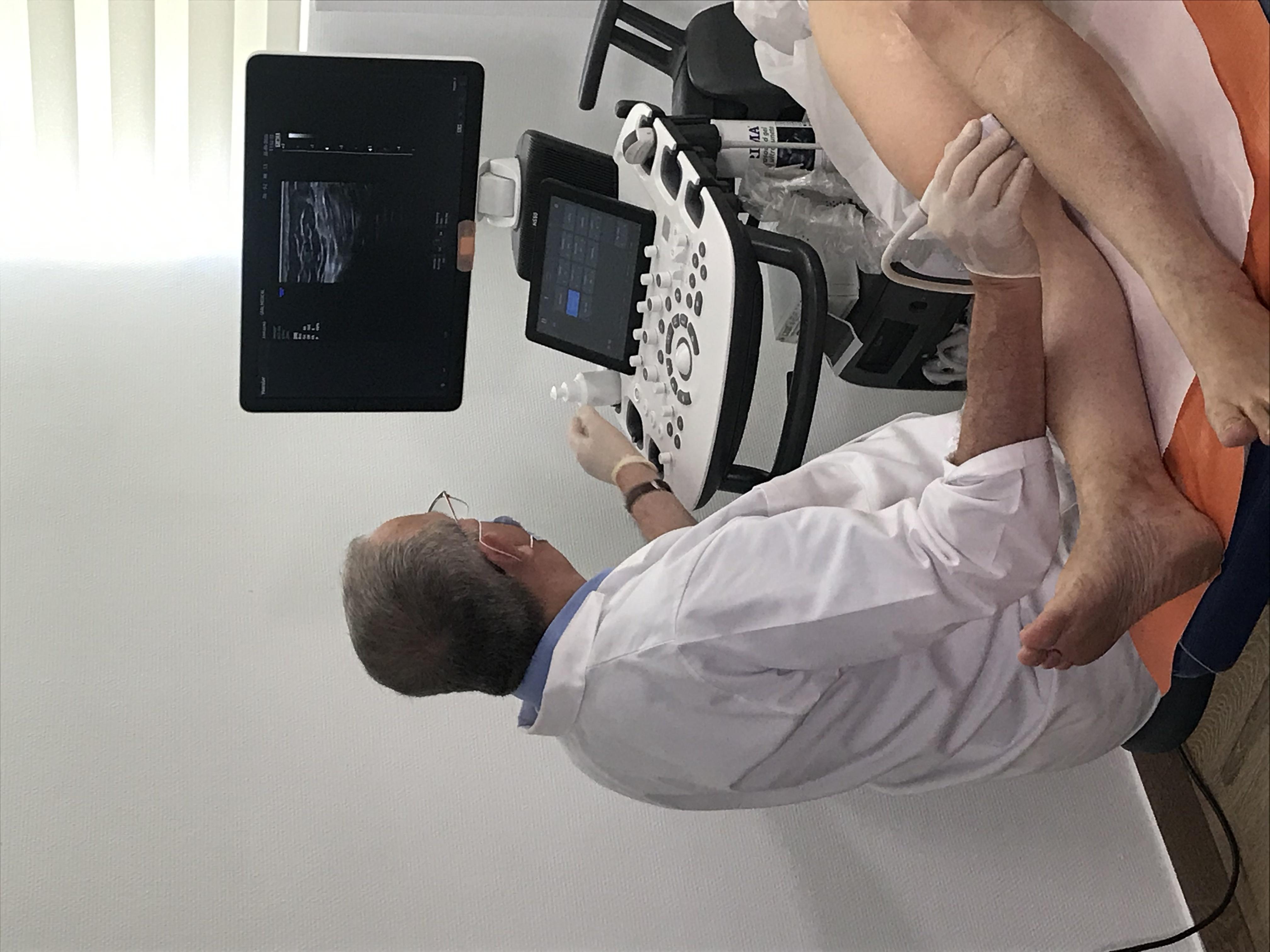 tratament varice scleroterapie