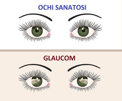 glaucom GRAL Medical