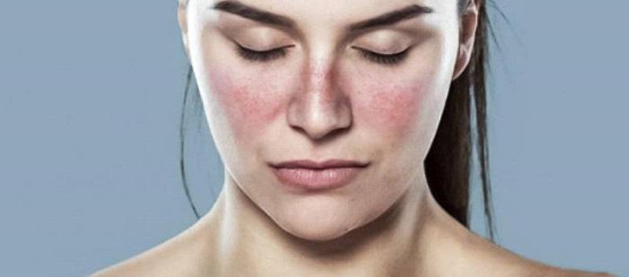boala lupusului eritematos