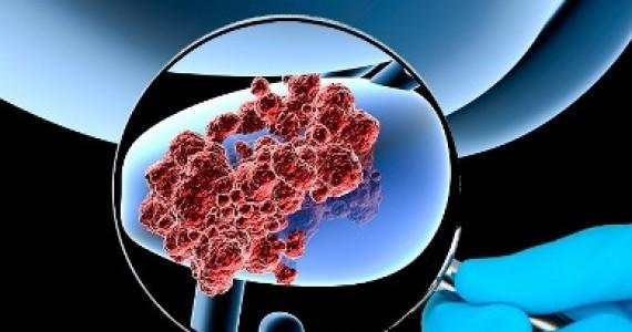 cancer prostata gral