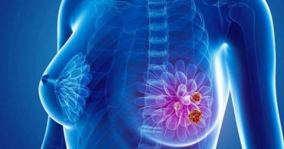 prezntare caz cancer mamar gral