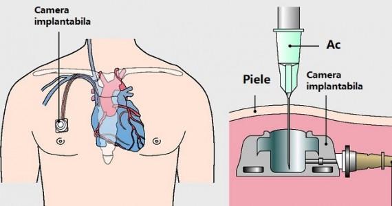 camera-implantabila-gralmedical