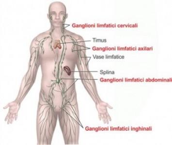 Formele de cancer ale sistemului limfatic - Ganglioni limfatici